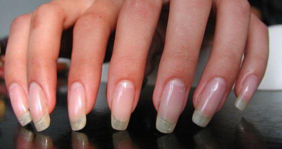 Tratament natural pentru unghii